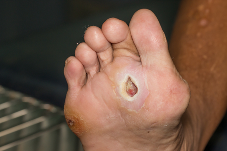 44497585 - wound of diabetic foot