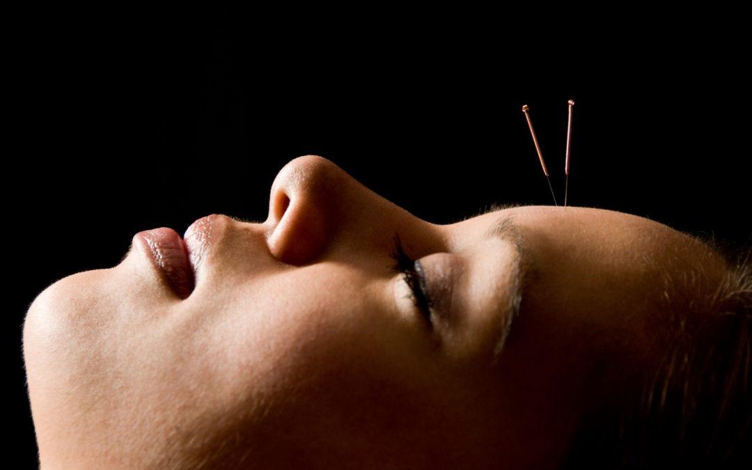 Qué sabes sobre la acupuntura y sus tratamientos para las enfermedades oculares